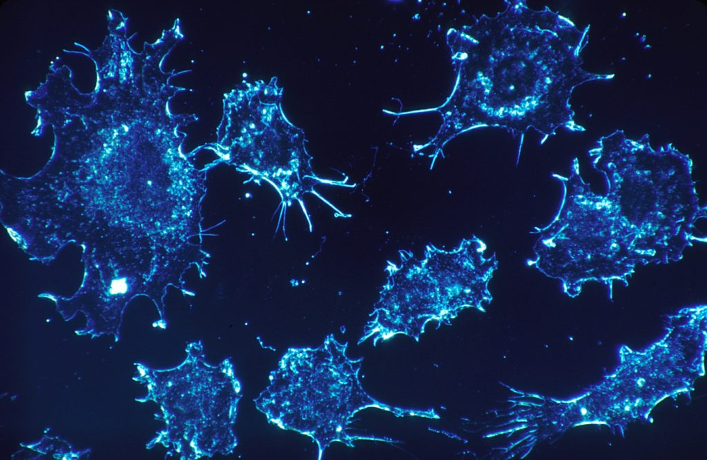 cancer-cells-protein-myths