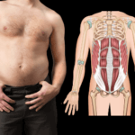 Diastasis Recti In Men Over 35