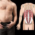 Diastasis Recti In Men Over 35