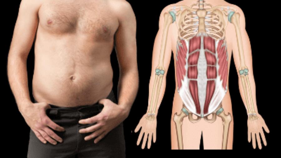 diastasis-recti-in-men-over-35-abs