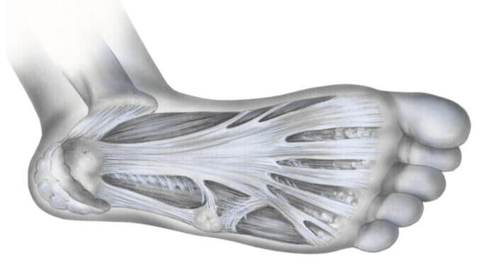 how-to-treat-plantar-fasciitis-foot